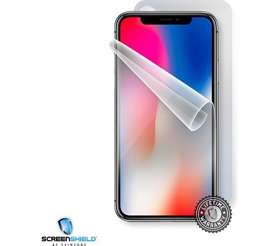 Screenshield APPLE iPhone X folie na celé tělo (APP-IPHX-B)