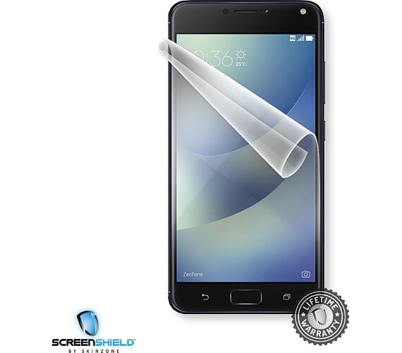 Screenshield ASUS Zenfone 4 Max ZC520KL folie na displej (ASU-ZC520KL-D)