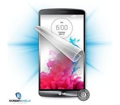 ScreenShield pro LG D722 G3s