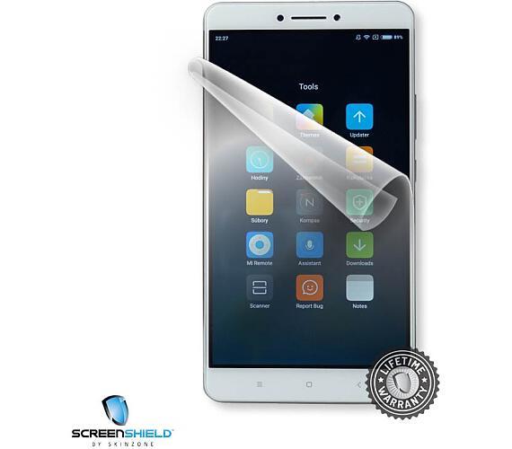 Screenshield™ Xiaomi Mi Max