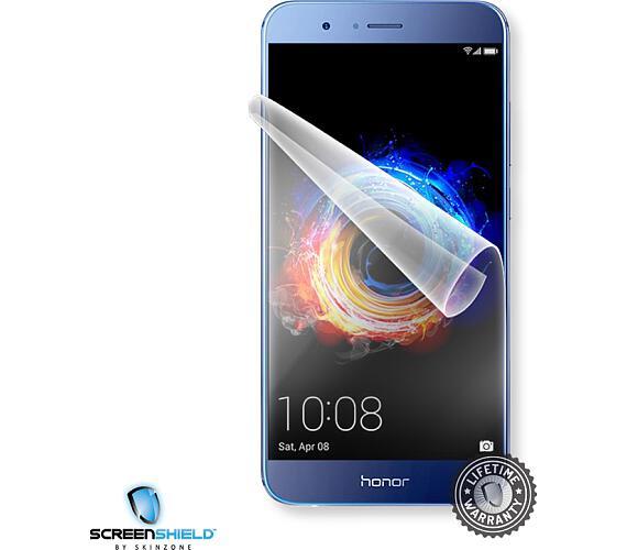 Screenshield™ HUAWEI Honor 8 Pro fólie na displej